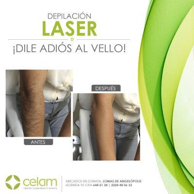 Tp Depilacion Laser En Puebla Dile Adios Al Vello Celam Centro Medico Laser De Sonata En Puebla Todopuebla Com
