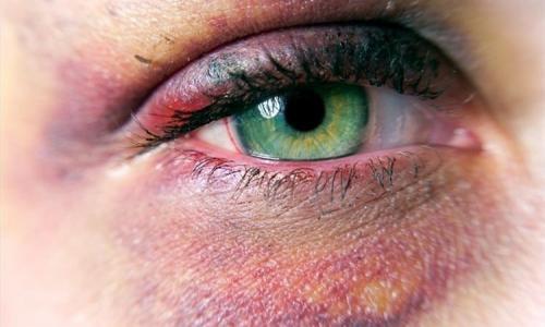 clinica de la ceguera en puebla