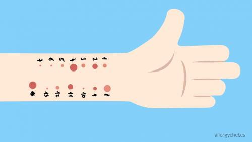 pruebas de alergia en niños precio