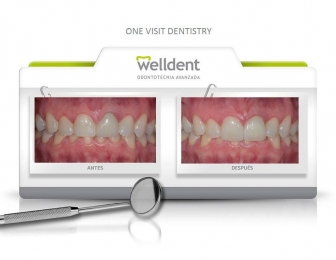 Blanqueamiento dental Welldent - Welldent - Puebla